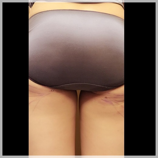高雄抽脂,高雄抽脂推薦,高雄抽脂價位,高雄抽脂按摩,高雄抽脂費用,高雄抽脂價格,高雄眼皮抽脂,高雄抽脂手術,高雄手臂抽脂,高雄市抽脂,高雄水刀抽脂,高雄自體抽脂推薦,高雄自體隆乳,高雄自體脂肪,自體脂肪高雄,高雄自體脂肪,高雄自體脂肪隆乳,高雄自體脂肪隆乳價格,高雄自體脂肪隆乳評價,高雄自體脂肪隆乳介紹,高雄自體脂肪隆乳分享,高雄自體脂肪隆乳價錢,高雄自體脂肪隆乳比較,高雄自體脂肪隆乳評論,高雄自體脂肪抽脂推薦,高雄自體脂肪抽脂價格,高雄自體脂肪抽脂評價,高雄自體脂肪抽脂介紹,高雄自體脂肪抽脂分享,高雄自體脂肪抽脂價錢,高雄自體脂肪抽脂比較,高雄自體脂肪抽脂評論,高雄自體脂肪隆乳,高雄自體脂肪豐頰,高雄 自體脂肪隆乳,高雄自體脂肪隆乳費用,高雄自體脂肪移植費用,高雄自體脂肪隆乳 推薦,自體脂肪移植高雄,高雄自體脂肪移植