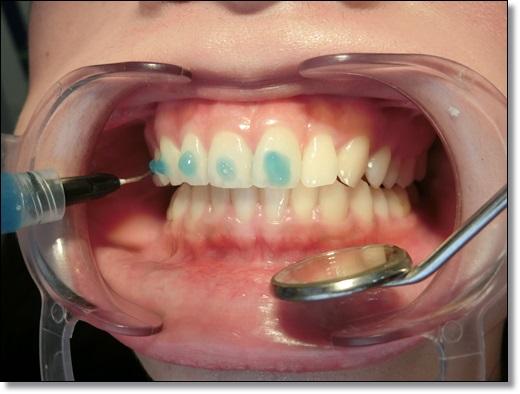 高雄,牙齒矯正,牙醫診所,牙科矯正,戴牙套,裝牙套,高雄牙齒矯正,牙科矯正費用,高雄裝牙套,牙齒矯正權威,牙齒矯正專科,高雄牙齒矯正診所推薦,高雄裝牙套診所推薦,高雄左營區牙醫矯正,牙醫診所,高雄牙醫權威,高雄牙科醫生,牙齒矯正分期,牙齒矯正權威,高雄牙齒矯正推薦,高雄牙齒矯正診所名單