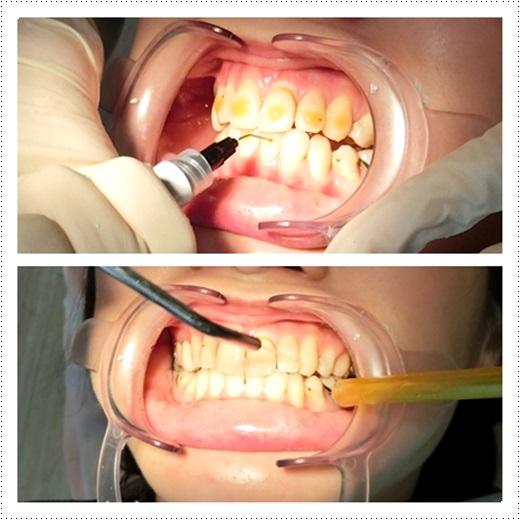 高雄,牙齒矯正,牙醫診所,牙科矯正,戴牙套, 裝牙套,高雄牙齒矯正,牙科矯正費用,高雄裝牙套,牙齒矯正權威,牙齒矯正專科,高雄牙齒矯正診所推薦,高雄裝牙套診所推薦,高雄左營區牙醫矯正,牙醫診所,高雄牙醫權威,高雄牙科醫生,高雄牙科矯正費用,高雄裝牙套,高雄牙齒矯正權威,牙齒矯正專科