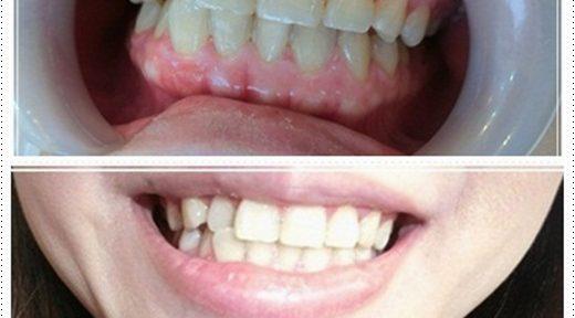 高雄,牙齒美白,牙醫診所,牙醫,冷光美白,冷光牙齒美白,牙齒冷光美白,高雄冷光美白,高雄牙齒美白,冷光美白診所,冷光牙齒美白推薦,牙齒冷光美白分享,冷光牙齒美白介紹,牙齒冷光美白推薦,高雄牙齒冷光美白,牙齒冷光美白分享,高雄冷光牙齒美白,冷光牙齒美白推薦,冷光美白牙齒,牙齒冷光美白分享,高雄冷光牙齒美白,冷光牙齒美白方法,冷光牙齒美白費用,冷光牙醫診所牙齒美白高雄,牙齒美白,牙醫診所,牙醫,冷光美白,冷光牙齒美白,牙齒冷光美白,高雄冷光美白,高雄牙齒美白,冷光美白診所,冷光牙齒美白推薦,牙齒冷光美白分享,冷光牙齒美白介紹,牙齒冷光美白推薦,高雄牙齒冷光美白,牙齒冷光美白分享,高雄冷光牙齒美白,冷光牙齒美白推薦,冷光美白牙齒,牙齒冷光美白分享,高雄冷光牙齒美白,冷光牙齒美白方法,冷光牙齒美白費用,冷光牙醫診所牙齒美白