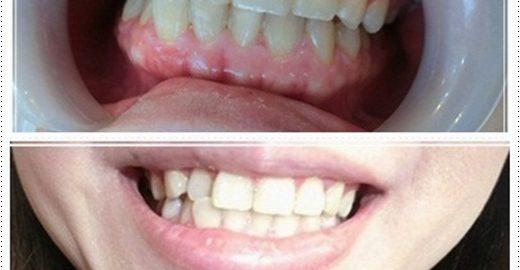 台南,牙齒美白,牙醫診所,牙醫,冷光美白,冷光牙齒美白,牙齒冷光美白,台南冷光美白,台南牙齒美白,冷光美白診所,冷光牙齒美白推薦,牙齒冷光美白分享,冷光牙齒美白介紹,牙齒冷光美白推薦,台南牙齒冷光美白,牙齒冷光美白分享,台南冷光牙齒美白,冷光牙齒美白推薦,冷光美白牙齒,牙齒冷光美白分享,台南牙齒美白推薦ptt,台南冷光牙齒美白推薦ptt,台南冷光牙齒美白,冷光牙齒美白推薦,冷光美白牙齒,牙齒冷光美白分享