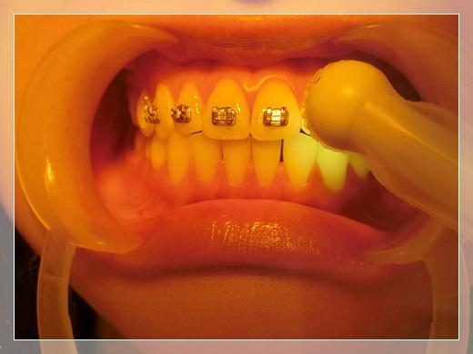 台南, 牙齒矯正, 牙醫診所, 牙科矯正, 戴牙套, 裝牙套, 台南牙齒矯正, 牙科矯正費用, 台南裝牙套, 牙齒矯正權威, 牙齒矯正專科, 台南牙齒矯正診所推薦, 台南裝牙套診所推薦, 台南左營區牙醫矯正, 牙醫診所, 台南牙醫權威, 台南牙科醫生,台南牙齒矯正推薦ptt,台南裝牙套推薦ptt,台南牙齒矯正推薦ptt,台南裝牙套推薦,台南牙齒矯正推薦,牙齒矯正專科