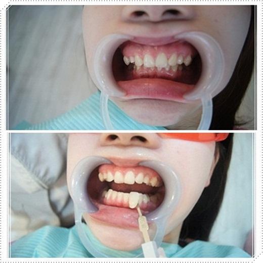台南,牙齒美白,牙醫診所,牙醫,冷光美白,冷光牙齒美白,牙齒冷光美白,台南冷光美白,台南牙齒美白,冷光美白診所,冷光牙齒美白推薦,牙齒冷光美白分享,冷光牙齒美白介紹,牙齒冷光美白推薦,台南牙齒冷光美白,牙齒冷光美白分享,台南冷光牙齒美白,冷光牙齒美白推薦,冷光美白牙齒,牙齒冷光美白分享,台南牙齒美白推薦ptt,冷光牙齒美白介紹,牙齒冷光美白推薦,台南牙齒冷光美白,牙齒冷光美白分享