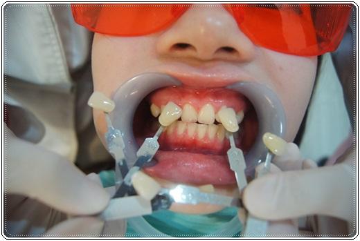 台南,牙齒美白,牙醫診所,牙醫,冷光美白,冷光牙齒美白,牙齒冷光美白,台南冷光美白,台南牙齒美白,冷光美白診所,冷光牙齒美白推薦,牙齒冷光美白分享,冷光牙齒美白介紹,牙齒冷光美白推薦,台南牙齒冷光美白,牙齒冷光美白分享,台南冷光牙齒美白,冷光牙齒美白推薦,冷光美白牙齒,牙齒冷光美白分享,台南牙齒美白推薦ptt,台南牙齒美白推薦,冷光牙齒美白介紹,牙齒冷光美白分享,冷光美白價格