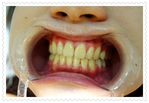 台南,牙齒美白,牙醫診所,牙醫,冷光美白,冷光牙齒美白,牙齒冷光美白,台南冷光美白,台南牙齒美白,冷光美白診所,冷光牙齒美白推薦,牙齒冷光美白分享,冷光牙齒美白介紹,牙齒冷光美白推薦,台南牙齒冷光美白,牙齒冷光美白分享,台南冷光牙齒美白,冷光牙齒美白推薦,冷光美白牙齒,牙齒冷光美白分享,台南牙齒美白推薦ptt,台南冷光牙齒美白推薦ptt,冷光牙齒美白推薦,牙齒冷光美白推薦,牙齒的