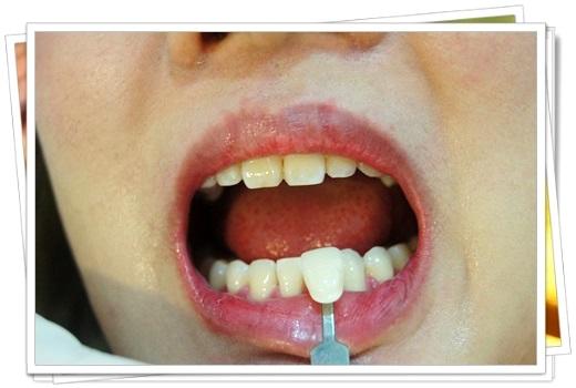 台南,牙齒美白,牙醫診所,牙醫,冷光美白,冷光牙齒美白,牙齒冷光美白,台南冷光美白,台南牙齒美白,冷光美白診所,冷光牙齒美白推薦,牙齒冷光美白分享,冷光牙齒美白介紹,牙齒冷光美白推薦,台南牙齒冷光美白,牙齒冷光美白分享,台南冷光牙齒美白,冷光牙齒美白推薦,冷光美白牙齒,牙齒冷光美白分享,台南牙齒美白推薦ptt,台南冷光牙齒美白推薦ptt,牙齒冷光美白經驗,冷光美白價格,台南牙齒美白