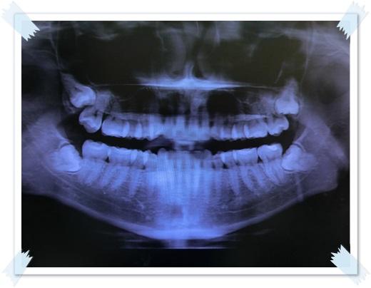 台南,牙齒美白,牙醫診所,牙醫,冷光美白,冷光牙齒美白,牙齒冷光美白,台南冷光美白,台南牙齒美白,冷光美白診所,冷光牙齒美白推薦,牙齒冷光美白分享,冷光牙齒美白介紹,牙齒冷光美白推薦,台南牙齒冷光美白,牙齒冷光美白分享,台南冷光牙齒美白,冷光牙齒美白推薦,冷光美白牙齒,牙齒冷光美白分享,台南牙齒美白推薦ptt,台南冷光牙齒美白推薦ptt,台南牙齒美白,冷光美白經驗,牙齒冷光美白推薦