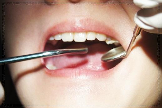 台南,牙齒美白,牙醫診所,牙醫,冷光美白,冷光牙齒美白,牙齒冷光美白,台南冷光美白,台南牙齒美白,冷光美白診所,冷光牙齒美白推薦,牙齒冷光美白分享,冷光牙齒美白介紹,牙齒冷光美白推薦,台南牙齒冷光美白,牙齒冷光美白分享,台南冷光牙齒美白,冷光牙齒美白推薦,冷光美白牙齒,牙齒冷光美白分享,台南牙齒美白推薦ptt,台南冷光牙齒美白推薦ptt,台南冷光美白價格,冷光牙齒美白推薦,台南牙齒冷光美白