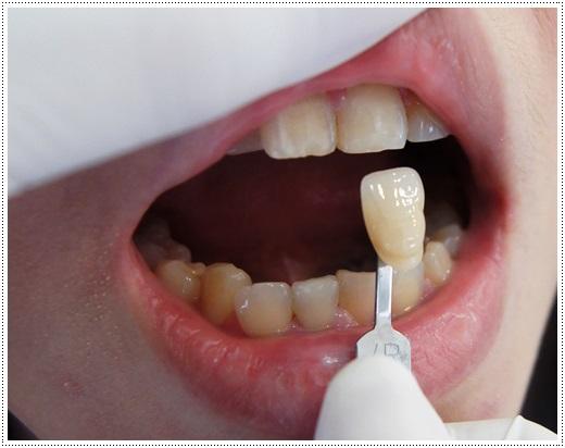 台南,牙齒美白,牙醫診所,牙醫,冷光美白,冷光牙齒美白,牙齒冷光美白,台南冷光美白,台南牙齒美白,冷光美白診所,冷光牙齒美白推薦,牙齒冷光美白分享,冷光牙齒美白介紹,牙齒冷光美白推薦,台南牙齒冷光美白,牙齒冷光美白分享,台南冷光牙齒美白,冷光牙齒美白推薦,冷光美白牙齒,牙齒冷光美白分享,台南牙齒美白推薦ptt,台南冷光牙齒美白推薦ptt,台南美白牙齒,牙齒冷光美白分享,冷光牙齒美白推薦