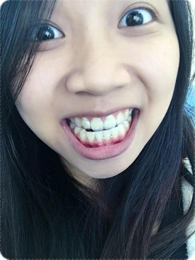 台南, 牙齒矯正, 牙醫診所, 牙科矯正, 戴牙套, 裝牙套, 台南牙齒矯正, 牙科矯正費用, 台南裝牙套, 牙齒矯正權威, 牙齒矯正專科, 台南牙齒矯正診所推薦, 台南裝牙套診所推薦, 台南左營區牙醫矯正, 牙醫診所, 台南牙醫權威, 台南牙科醫生,台南牙齒矯正推薦ptt,台南裝牙套推薦ptt,台南牙齒矯正推薦ptt,台南牙齒矯正權威,牙齒矯正專科,台南裝牙套診所推薦,牙醫矯正