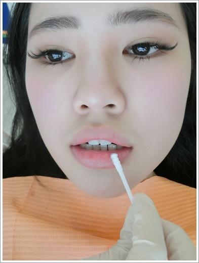 台南, 牙齒矯正, 牙醫診所, 牙科矯正, 戴牙套, 裝牙套, 台南牙齒矯正, 牙科矯正費用, 台南裝牙套, 牙齒矯正權威, 牙齒矯正專科, 台南牙齒矯正診所推薦, 台南裝牙套診所推薦, 台南左營區牙醫矯正, 牙醫診所, 台南牙醫權威, 台南牙科醫生,台南牙齒矯正推薦ptt,台南裝牙套推薦ptt,台南牙齒矯正推薦ptt,牙齒矯正專科,牙齒矯正分期,牙齒矯正權威,牙齒矯正醫生推薦