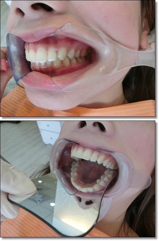 台南, 牙齒矯正, 牙醫診所, 牙科矯正, 戴牙套, 裝牙套, 台南牙齒矯正, 牙科矯正費用, 台南裝牙套, 牙齒矯正權威, 牙齒矯正專科, 台南牙齒矯正診所推薦, 台南裝牙套診所推薦, 台南左營區牙醫矯正, 牙醫診所, 台南牙醫權威, 台南牙科醫生,台南牙齒矯正推薦ptt,台南裝牙套推薦ptt,台南牙齒矯正推薦ptt,牙齒矯正分期,牙齒矯正權威,台南牙齒矯正推薦,台南牙齒矯正診所名單