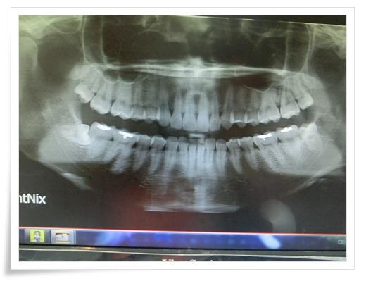 台南, 牙齒矯正, 牙醫診所, 牙科矯正, 戴牙套, 裝牙套, 台南牙齒矯正, 牙科矯正費用, 台南裝牙套, 牙齒矯正權威, 牙齒矯正專科, 台南牙齒矯正診所推薦, 台南裝牙套診所推薦, 台南左營區牙醫矯正, 牙醫診所, 台南牙醫權威, 台南牙科醫生,台南牙齒矯正推薦ptt,台南裝牙套推薦ptt,台南牙齒矯正推薦ptt,台南牙齒矯正分期,台南牙齒矯正牙醫師,台南牙齒矯正推薦