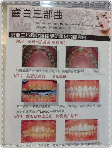 高雄,牙齒美白,牙醫診所,牙醫,冷光美白,冷光牙齒美白,牙齒冷光美白,高雄冷光美白,高雄牙齒美白,冷光美白診所,冷光牙齒美白推薦,牙齒冷光美白分享,冷光牙齒美白介紹,牙齒冷光美白推薦,高雄牙齒冷光美白,牙齒冷光美白分享,高雄冷光牙齒美白,冷光牙齒美白推薦,冷光美白牙齒,牙齒冷光美白分享,高雄冷光牙齒美白 ,冷光牙齒美白方法 ,冷光牙齒美白費用 ,冷光牙醫診所牙齒美白